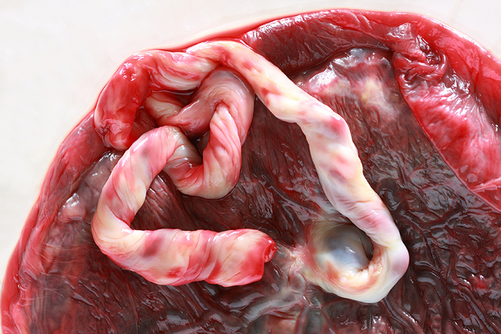 What Is This Placenta