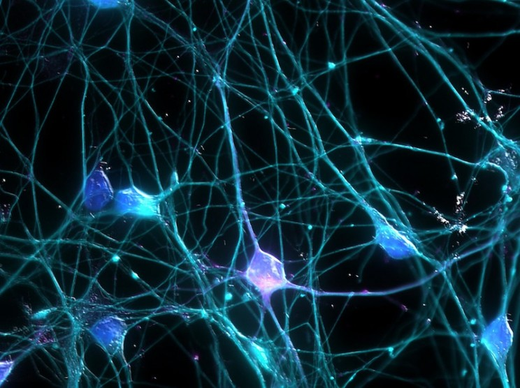 Artificial Neurons Making Using Silicon Chips
