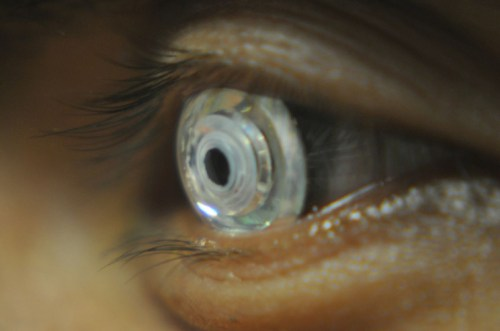 New Scientific Invention: Contact Lens That Zoom in the Blink of an Eye