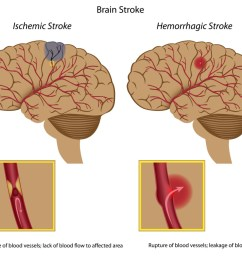 signs and symptoms of stroke [ 1024 x 859 Pixel ]