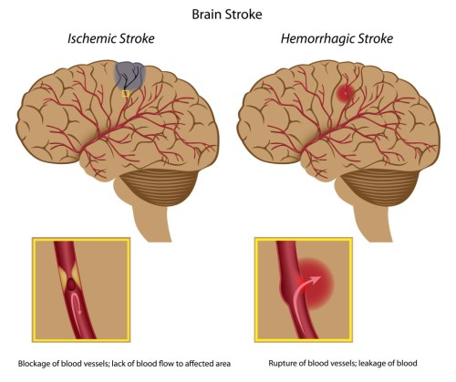 small resolution of signs and symptoms of stroke