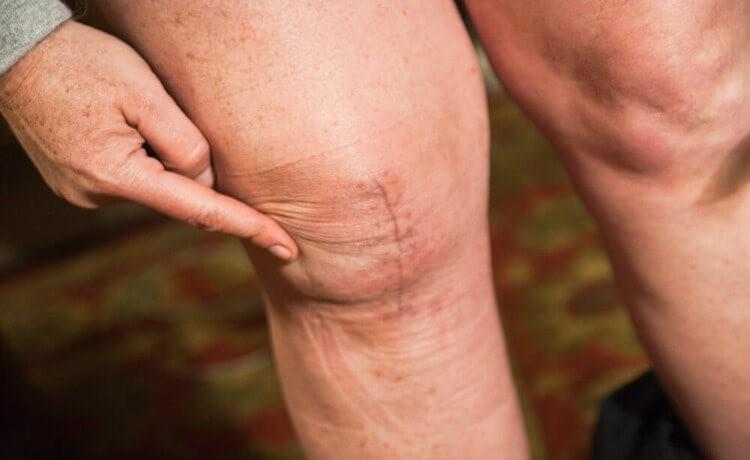Mulher tem joelho quebrado ao cair de moto
