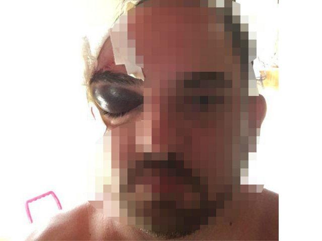 Espancado com faca e canivete, homem procura a polícia e acusa genro pelo crime