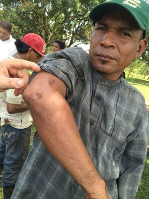 YATAMA secretary, Rosman Flores was shot by a Sandinista soldier while traveling through the conflict zone in September of 2015. Photo: Courtney Parker, Intercontinental Cry 2016