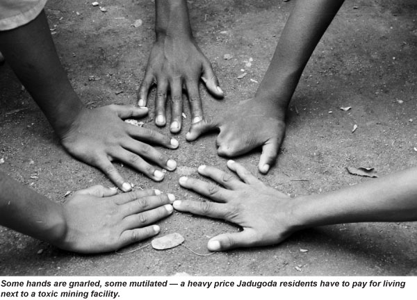 birth_defects_from_uranium_mining_jadugoda
