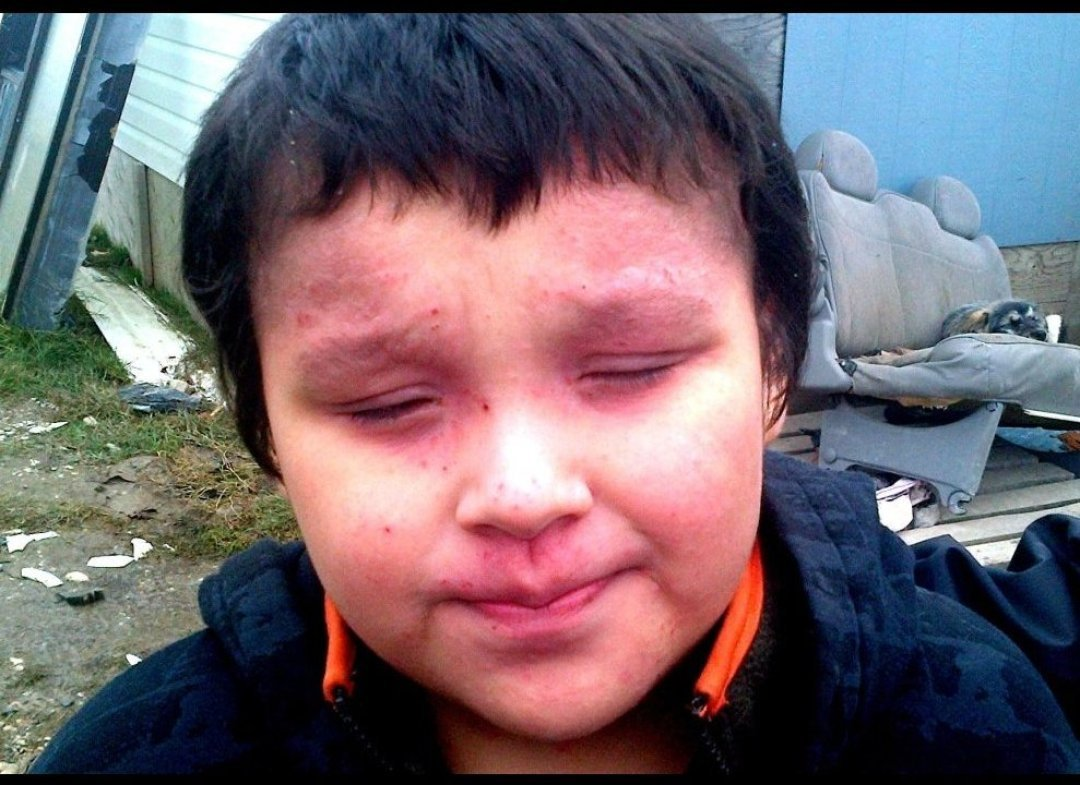 Attawapiskat: A child with a facial rash from lack of clean water and sanitation.