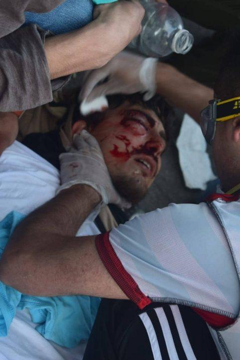 Rodrigo Lagarini tras ser impactado por una lacrimógena disparada a quemarropa.