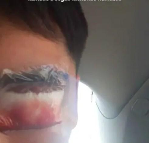 El estudiante de enseñanza media Raúl Del Valle perdió su globo ocular tras un proyectil percutado por carabineros.
