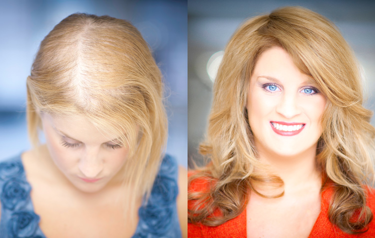 Hair Integration Before and After with Evolve Volumizer