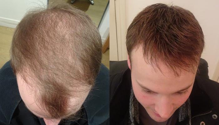 General thinning | International Hair Studio