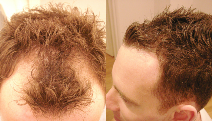 Hairline receding rogaine for Does Minoxidil