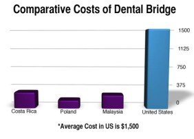 Dental Bridge Cost Comparison