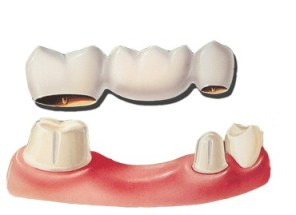 DentalBridges2 2