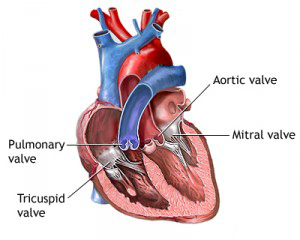 Heart Valve Replacement Diagram