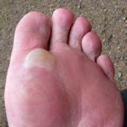How to Prevent and Treat Hiking Blisters