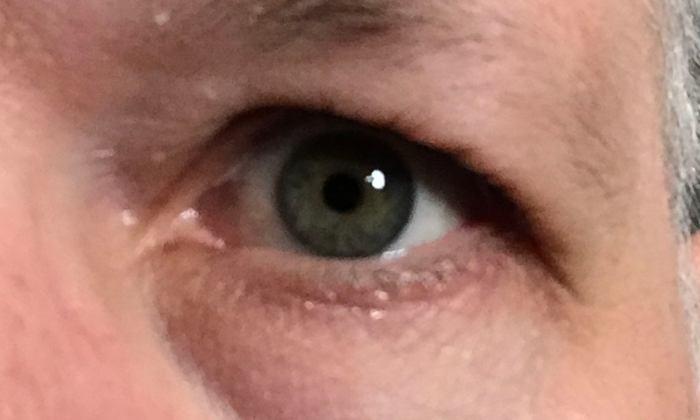 Auge ganz nah