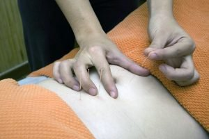 Acupuncture - Natural Synergy