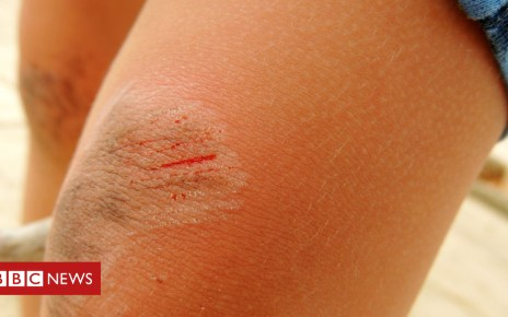102192821 gettyimages 612257936 - Why petroleum jelly may not be the best thing to heal cuts