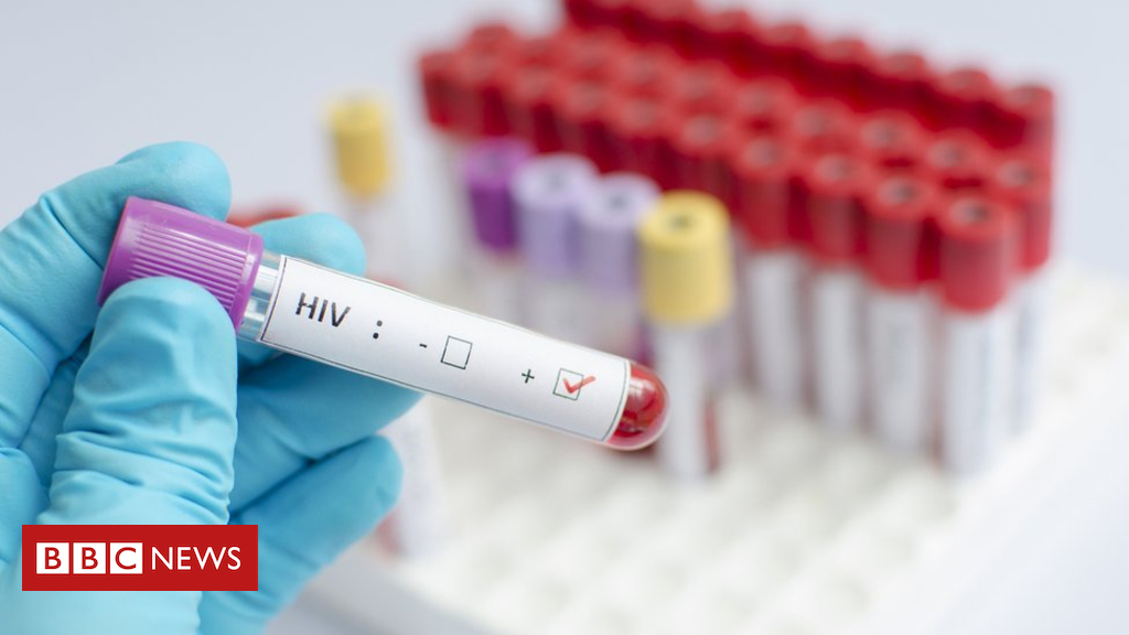 102408838 gettyimages 492938248 - HIV vaccine shows promise in human trial
