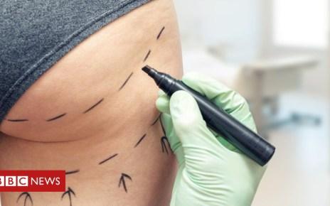 103278410 bum - Second Brit dies after 'Brazilian butt lift' surgery