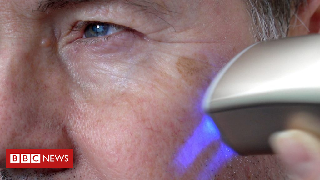 105137661 p06xr1s4 - CES 2019: Skin printer wipes years from your face