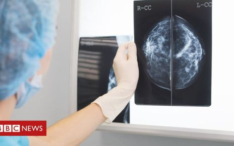 105991979 gettyimages 839295568 - NI cancer rates increase by 15%