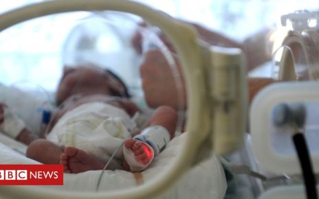 106224346 gettyimages 147763803 - Portugal baby born to woman brain dead for three months