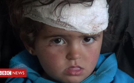 106896082 p078rr9q - Syria war: Toddler 'only one left' after air strike