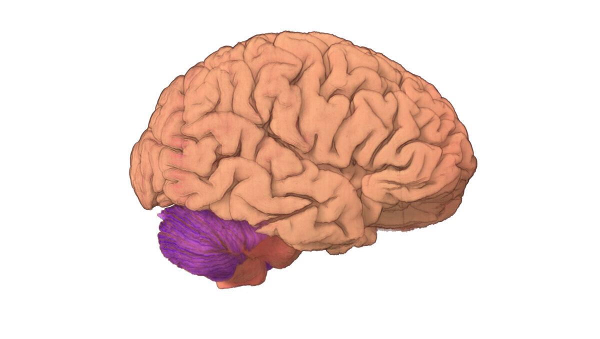 hight resolution of brain 2