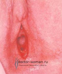 Перегородчатая девственная плева