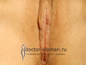 После лабиопластики