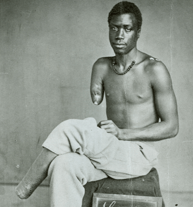 Private Lewis Martin, Black Civil War Soldier missing an arm and a leg