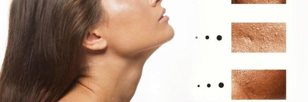 Cum să micșorezi porii dilatați în mod natural