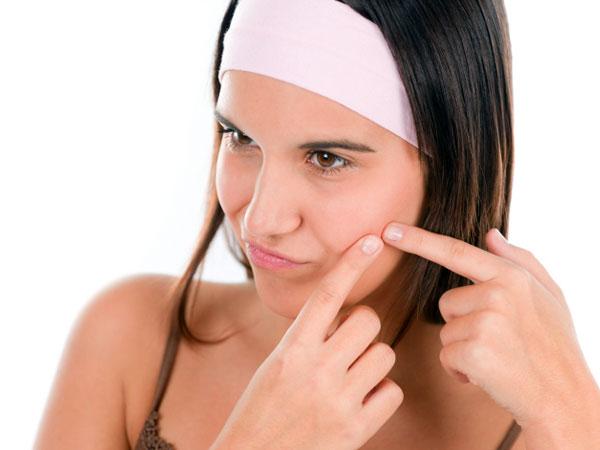 Pasta de dinți pentru acnee