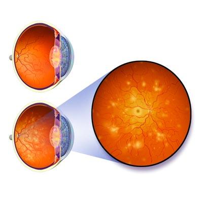 Retinopatía Diabética. Enfermedades y tratamientos para los problemas oculares por el Instituto Oftalmológico Recoletas.