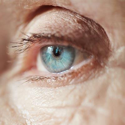 Esclerectomía profunda no perforante. Enfermedades y tratamientos para los problemas oculares por el Instituto Oftalmológico Recoletas.