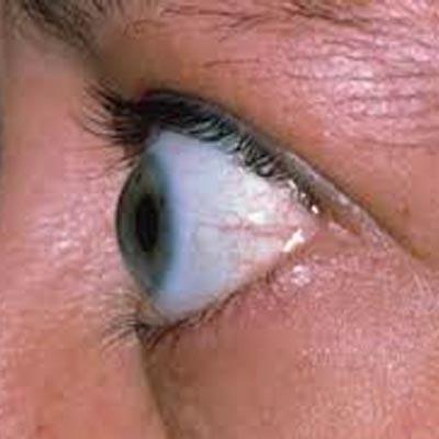 Exoftalmos. Enfermedades y tratamientos para los problemas oculares por el Instituto Oftalmológico Recoletas.