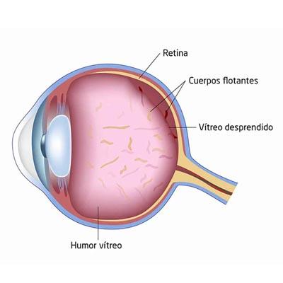 Miodesopsias. Enfermedades y tratamientos para los problemas oculares por el Instituto Oftalmológico Recoletas.
