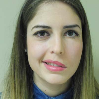 Parálisis Facial. Enfermedades y tratamientos para los problemas oculares por el Instituto Oftalmológico Recoletas.