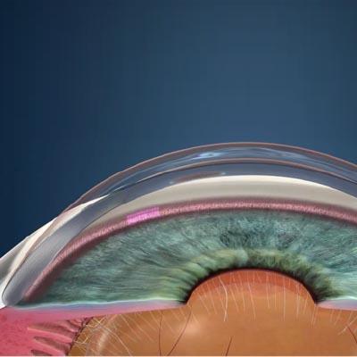 Trabeculoplastia láser selectiva - SLT. Enfermedades y tratamientos para los problemas oculares por el Instituto Oftalmológico Recoletas.