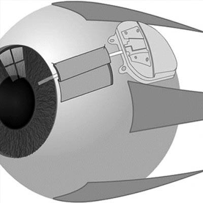 Válvulas para glaucoma. Enfermedades y tratamientos para los problemas oculares por el Instituto Oftalmológico Recoletas.
