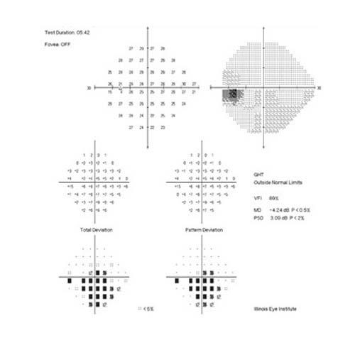 Campimetría computerizada. Instalaciones y equipación para los problemas oculares del Instituto Oftalmológico Recoletas.
