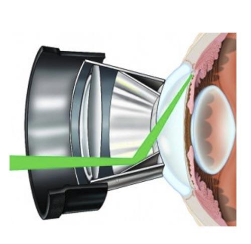 Láser Pascal. Instalaciones y equipación para los problemas oculares del Instituto Oftalmológico Recoletas.