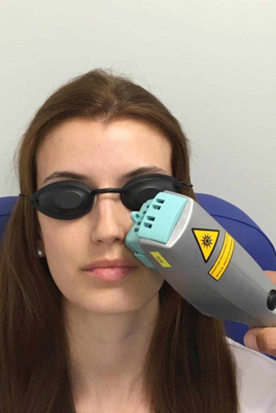 Tratamientos con luz pulsada IPL y LLLT. Enfermedades y tratamientos para los problemas oculares por el Instituto Oftalmológico Recoletas.
