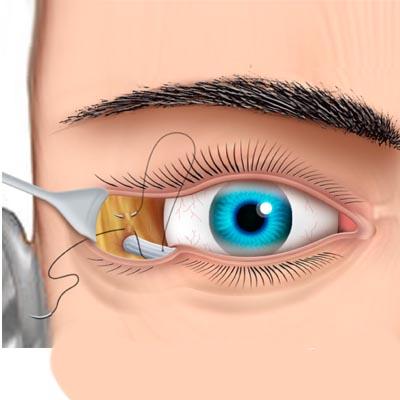 Ectropión. Enfermedades y tratamientos para los problemas oculares por el Instituto Oftalmológico Recoletas.