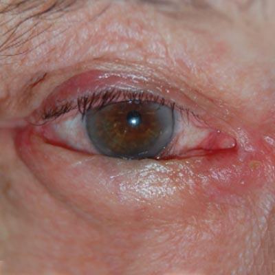 Entropión. Enfermedades y tratamientos para los problemas oculares por el Instituto Oftalmológico Recoletas.