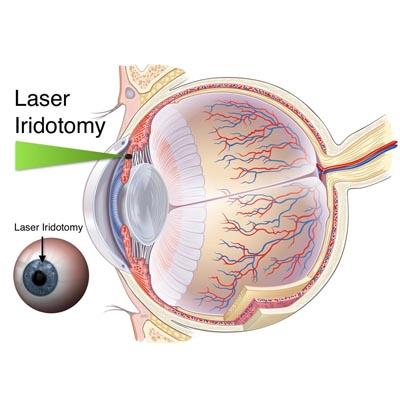 Iridotomia. Enfermedades y tratamientos para los problemas oculares por el Instituto Oftalmológico Recoletas.