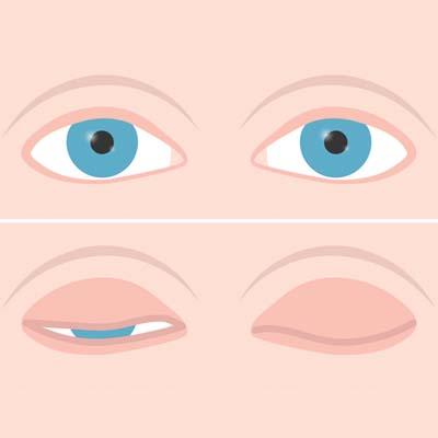 Lagoftalmos. Enfermedades y tratamientos para los problemas oculares por el Instituto Oftalmológico Recoletas.