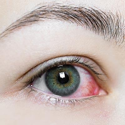 Vitrectomía pars plana. Enfermedades y tratamientos para los problemas oculares por el Instituto Oftalmológico Recoletas.