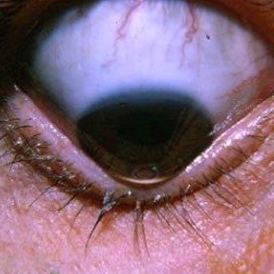 Queratocono. Enfermedades y tratamientos para los problemas oculares por el Instituto Oftalmológico Recoletas.